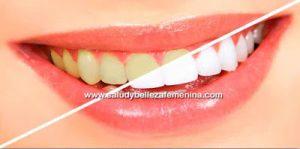 Agua oxigenada para blanquear los dientes
