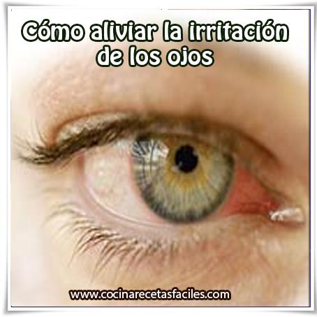 Salud  , remedios caseros para aliviar irritación de los ojos, remedios caseros