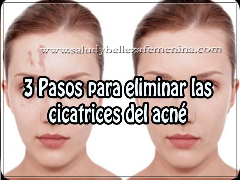 Cuidados del rostro , belleza , 3 pasos para eliminar las  cicatrices del acné