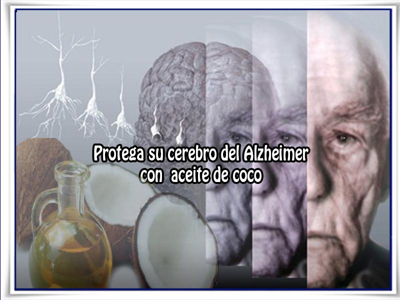 Salud y bienestar, aceite de coco, alzheimer