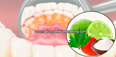 Salud  y bienestar, remedios naturales, salud bucal