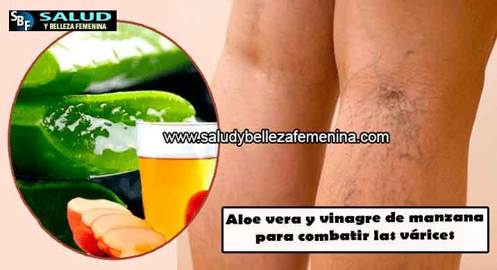 Aloe vera y vinagre de manzana paracombatir las várices