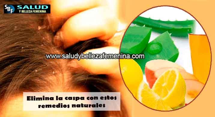 Elimina la caspa con estos remedios naturales