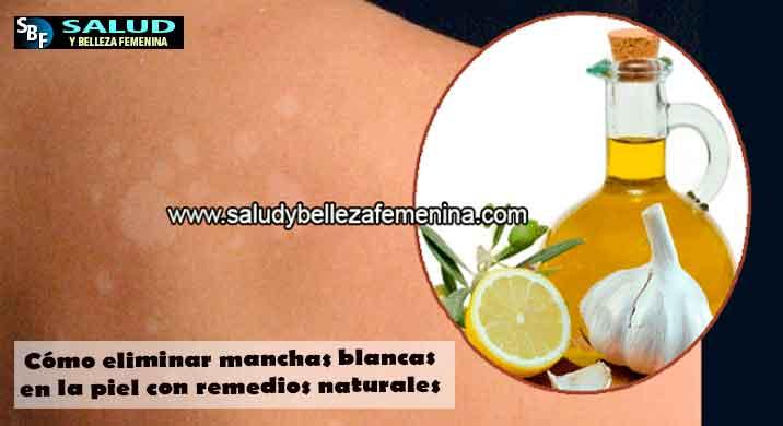 Cómo eliminar manchas blancas en la piel con remedios naturales