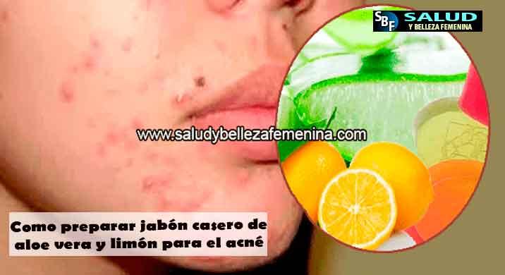 Como preparar jabón casero de aloe vera y limón para el acné