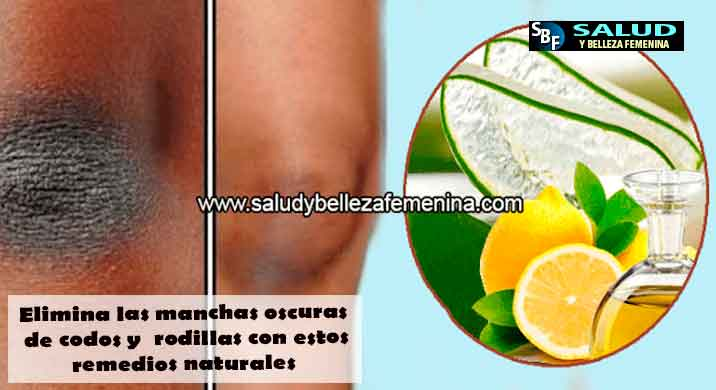 Elimina las manchas oscuras de codos y  rodillas con estos remedios naturales
