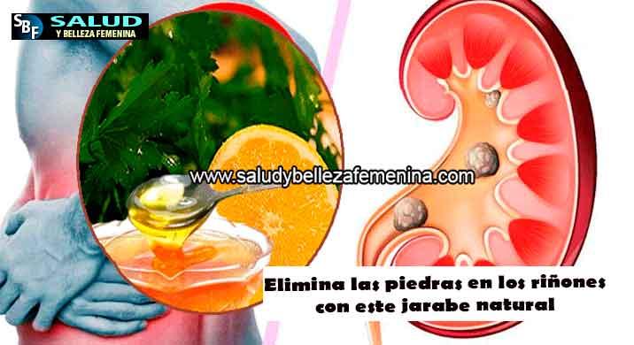 Elimina las piedras en los riñones con este jarabe natural