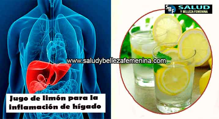 Jugo de limón para la inflamación de hígado