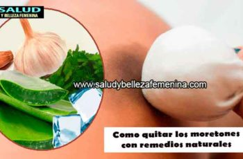 Como quitar los moretones con remedios naturales
