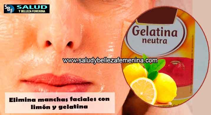 Elimina manchas faciales con limón y gelatina