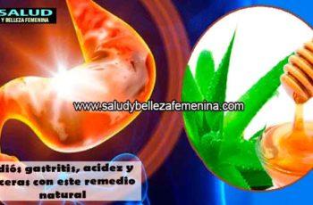 Adiós gastritis, acidez y ulceras con este remedio natural