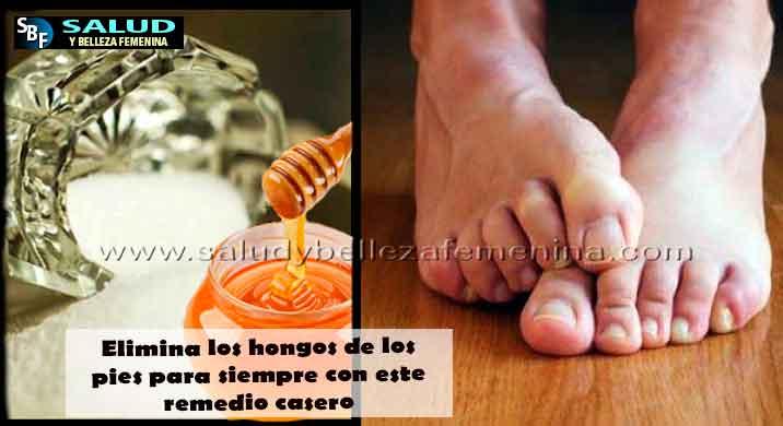 Elimina los hongos de los pies para siempre con este remedio casero