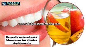 Remedio natural para blanquear tus dientes rápidamente