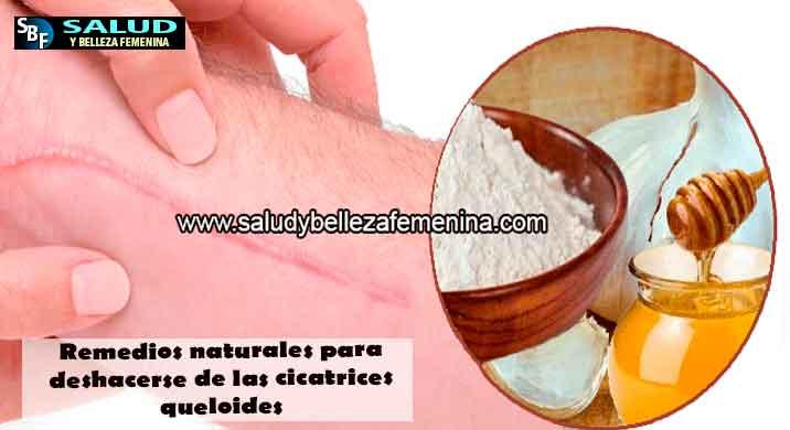 Remedios naturales para deshacerse de las cicatrices queloides