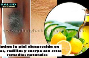 Elimina la piel obscurecida en codos, rodillas y cuerpo con estos remedios naturales