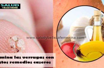 Elimina las verrugas con estos remedios caseros
