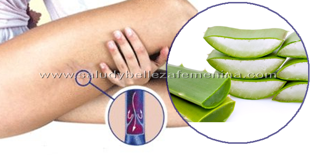 Como atenuar   las várices con sábila, este tip te ayudará a atenuarlas, ya que el gel de la sábila tiene una acción antiinflamatoria que puede disminuir la inflamación de los vasos sanguíneos.