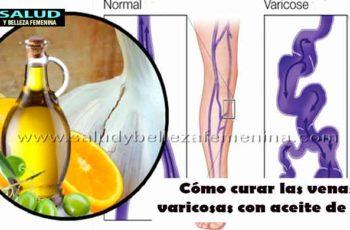 Cómo curar las venas varicosas con aceite de ajo