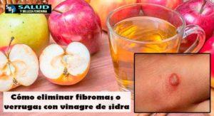 Cómo eliminar fibromas o verrugas con vinagre de sidra