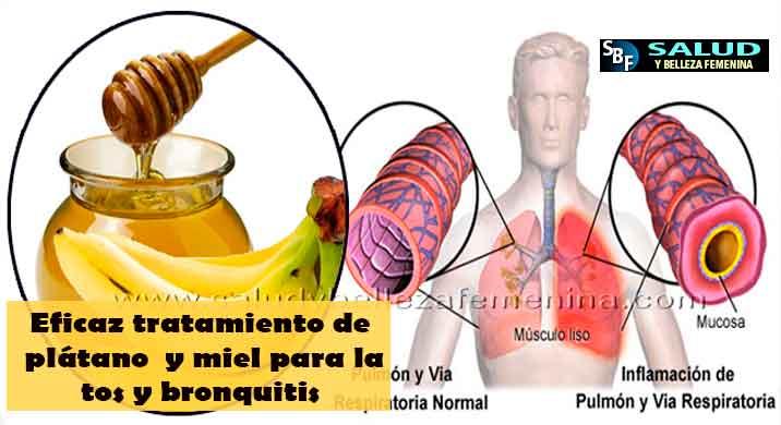 Eficaz tratamiento de plátano y miel para la tos y bronquitis