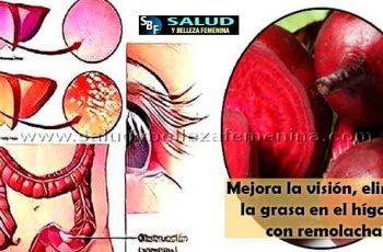 Mejora la visión, elimina la grasa en el hígado con remolacha