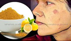 Mascarilla natural para quitar manchas marrones de la piel