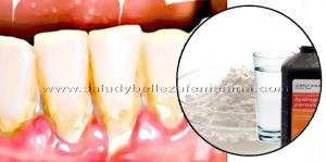 Elimina la placa de los dientes con este enjuague bucal