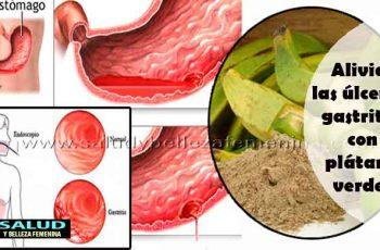 Alivia las úlceras gastritis con plátano verde