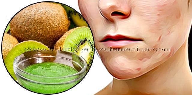 Mascarilla natural muy potente para acelerar la cicatrización, el kiwi es una fruta con alto contenido de vitamina C, contribuye a mejorar el proceso de cicatrización de la piel para lograr una rápida curación de las heridas.
