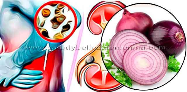 Cebolla para limpiar los riñones